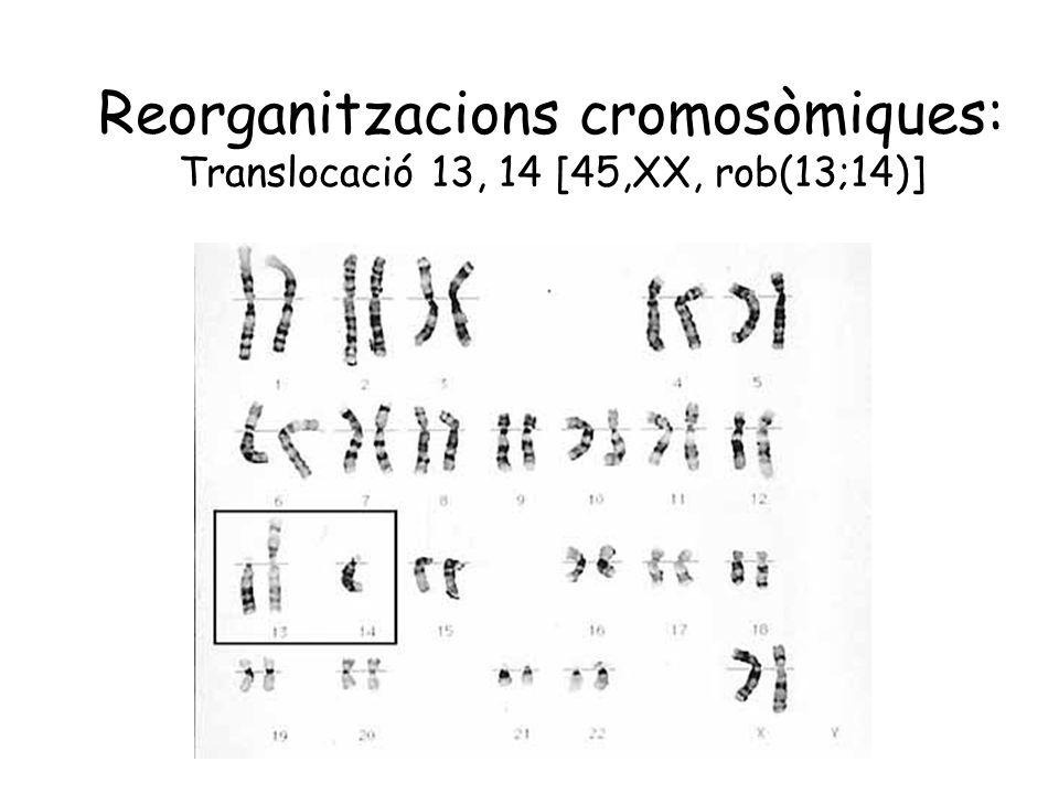 Reorganitzacions cromosòmiques: Translocació 13, 14 [45,XX, rob(13;14)]